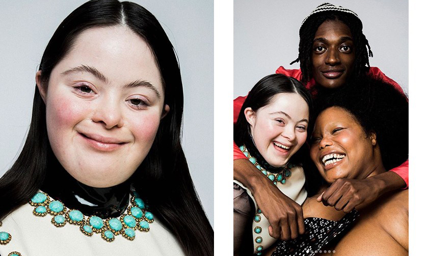 大获好评,Gucci Beauty 聘用患唐氏综合症的模特拍摄广告大片